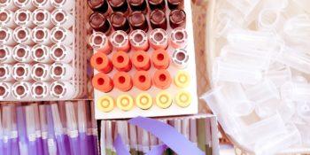 Vaccinazione anti COVID-19 per persone sopra gli 80 anni